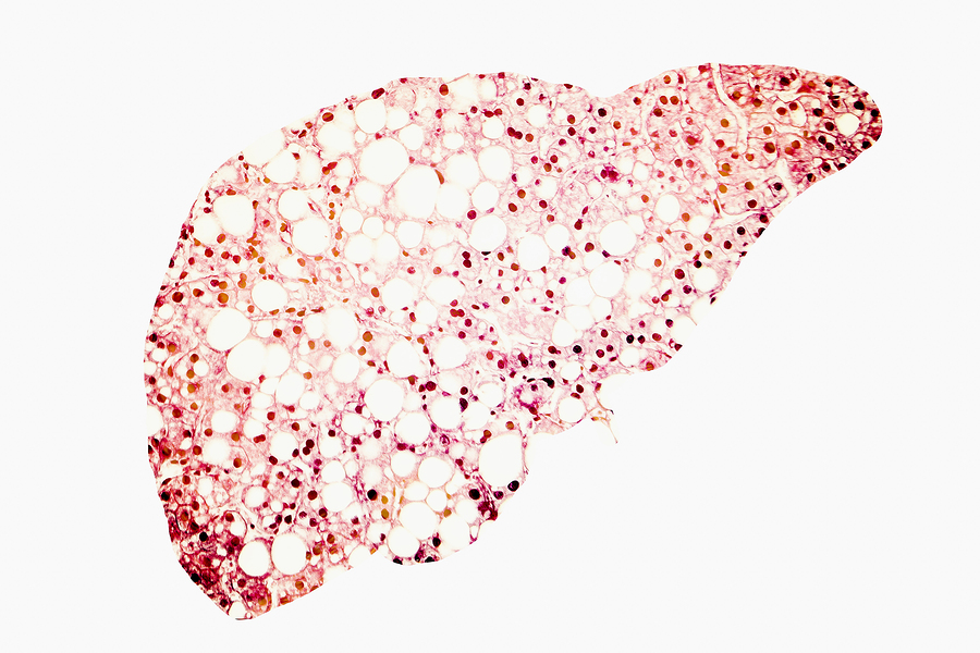 Fatty liver silhouette made from micrograph of liver steatosis